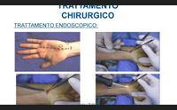 patologie della mano trattamenti mininvasivi e riabilitazione