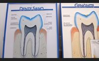 (x tg sab)parodontite luned l inserto salute con l unione sarda